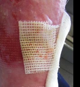 124-275x300 Уход за кожей больных буллезным эпидермолизом