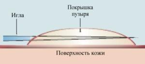 125-300x132 Уход за кожей больных буллезным эпидермолизом