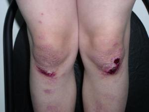 13_1-300x225 Уход за кожей больных буллезным эпидермолизом