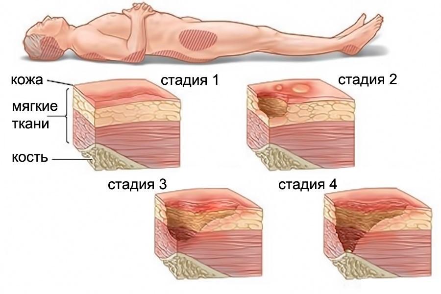 1552553835_1521210519_prolezhni2 Пролежни. Лечение