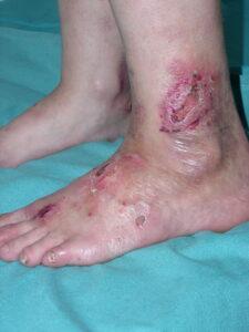 5-225x300 Уход за кожей больных буллезным эпидермолизом
