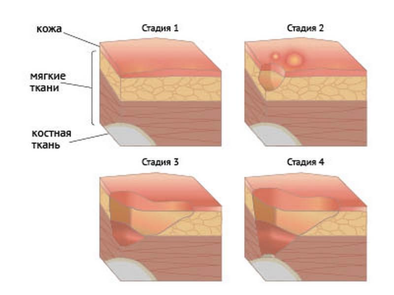 Stadii_yazva Трофические язвы и их лечение