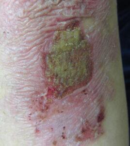image030-268x300 Уход за кожей больных буллезным эпидермолизом
