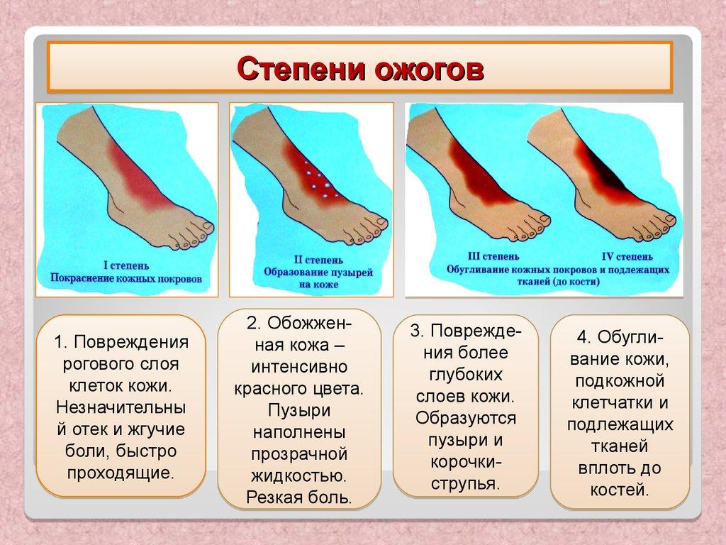 stepeni-povrezhdeniya-pri-ozhogah-i-obmorozheniyah Степени тяжести ожогов и их лечение